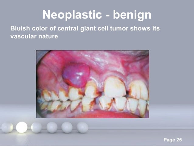 Powerpoint Templates Page 25 Neoplastic - benign Bluish color of central giant cell tumor shows its vascular nature