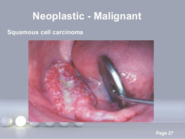 Powerpoint Templates Page 27 Neoplastic - Malignant Squamous cell carcinoma