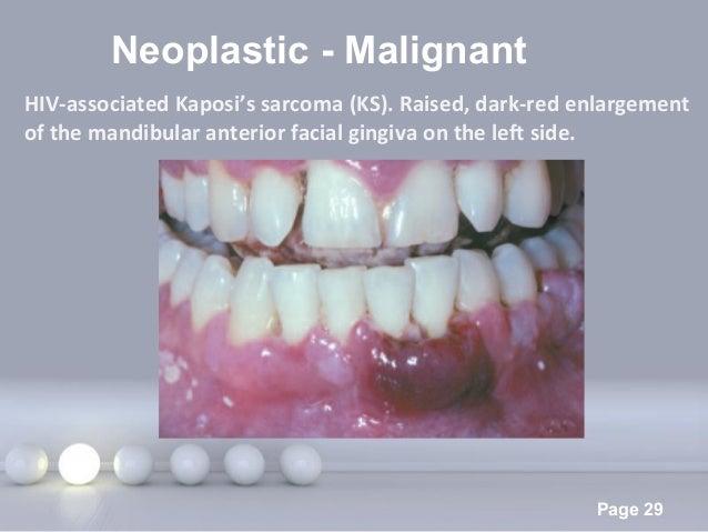 Powerpoint Templates Page 29 Neoplastic - Malignant HIV-associated Kaposi's sarcoma (KS). Raised, dark-red enlargement of ...