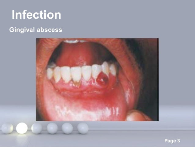 Parulis Fistula Dental Abscess Treatment and Symptoms