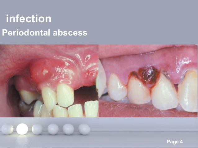 Powerpoint Templates Page 4 infection Periodontal abscess