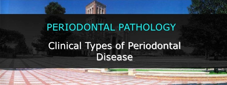 PERIODONTAL PATHOLOGY<br />Clinical Types of Periodontal Disease<br />