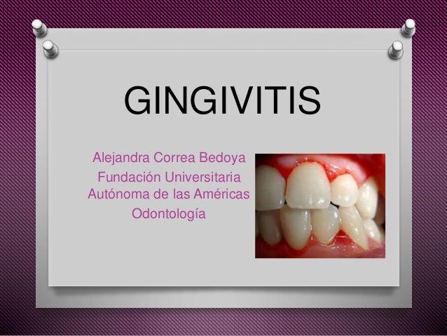 GINGIVITIS Alejandra Correa Bedoya Fundación Universitaria Autónoma de las Américas Odontología
