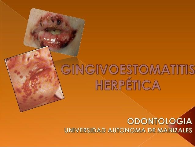  HSV-1: Causa por logeneralmanifestacionesbucales. HSV-2: involucradoprincipalmente en lasinfeccionesanogenitales y enoc...