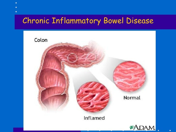 article review a chronic inflammatory disease Inflammatory bowel disease the immune response disrupts the intestinal mucosa and leads to a chronic inflammatory process whelan k, lindsay jo evidence for the use of probiotics and prebiotics in inflammatory bowel disease: a review of clinical trials proc nutr soc 2007 aug.