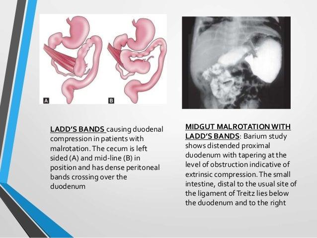 small intestine slide