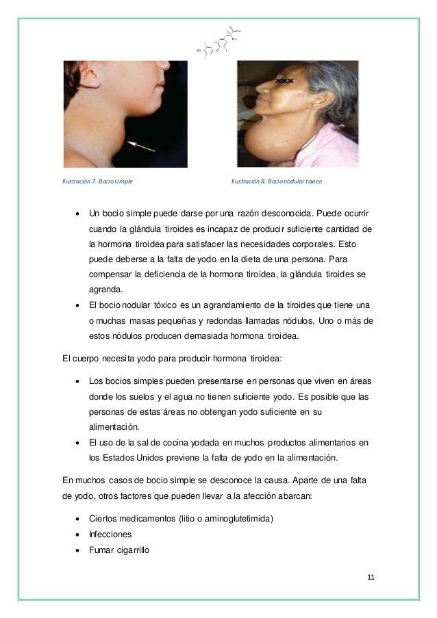 Proyecto Glándula Tiroides