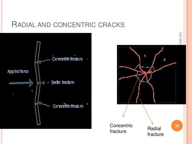 RADIAL AND CONCENTRIC CRACKS 1/21/2015 23 saurabhbhargava Radial fracture Concentric fracture