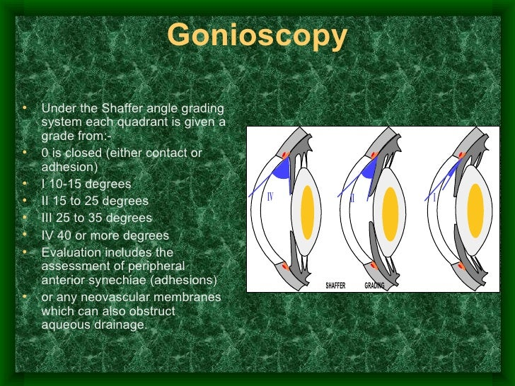 Gonioscopy <ul><li>Under the Shaffer angle grading system each quadrant is given a grade from:- </li></ul><ul><li>0 is clo...