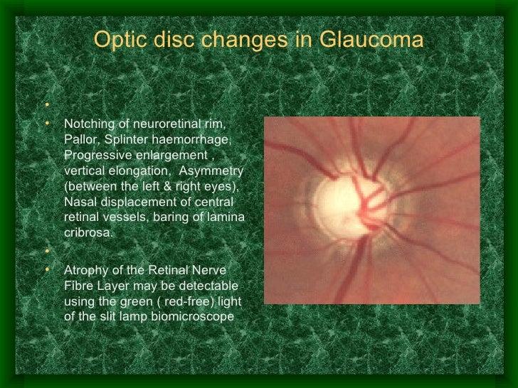 Optic disc changes in Glaucoma <ul><li> </li></ul><ul><li>Notching of neuroretinal rim, Pallor, Splinter haemorrhage, Pro...
