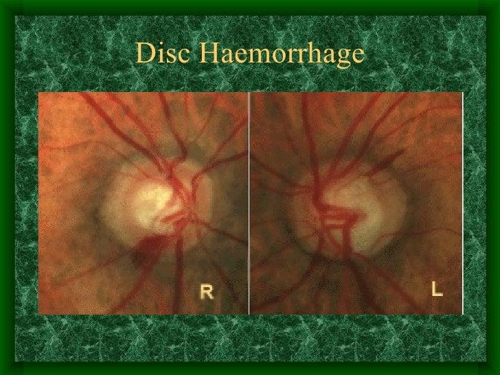 Disc Haemorrhage