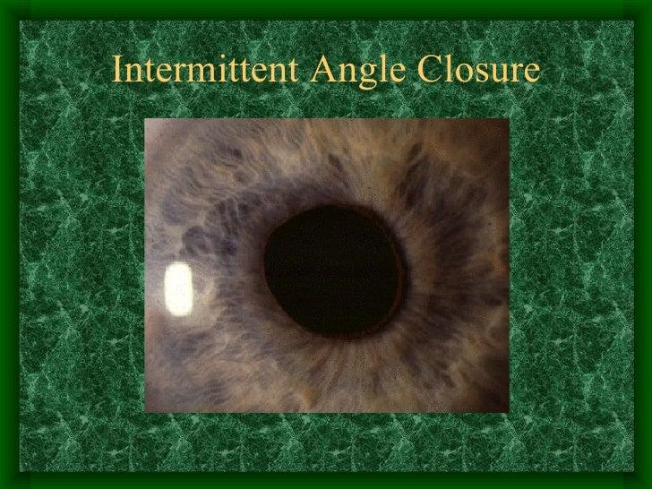 Intermittent Angle Closure