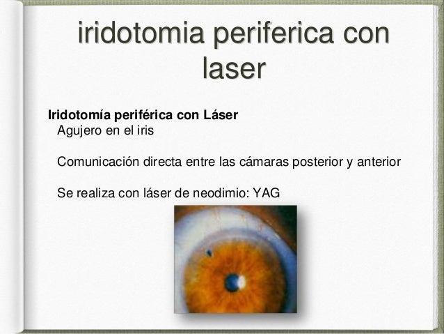 Glaucoma De Angulo Cerrado Y Abierto