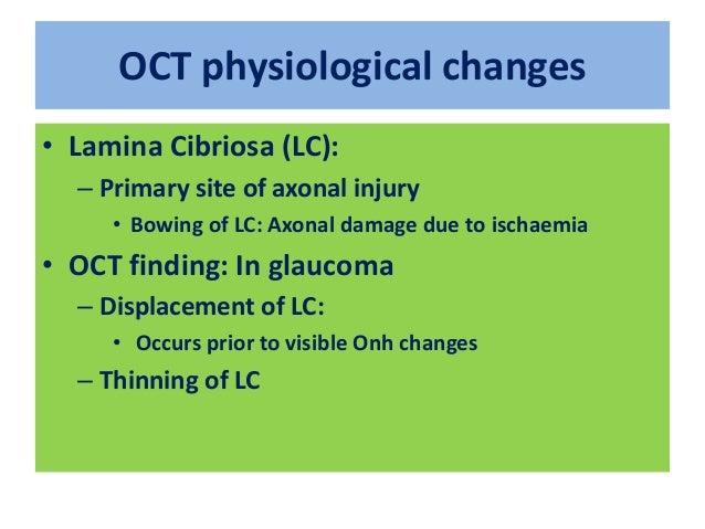 Accurate TONOMETRY: Obstacles • GAT: ?? Gold standard –NO!!! • CCT • Myopia • Keratoconus • Children • Corneal scarring • ...