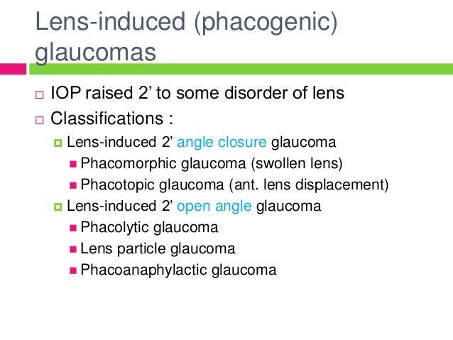 steroid induced glaucoma pdf