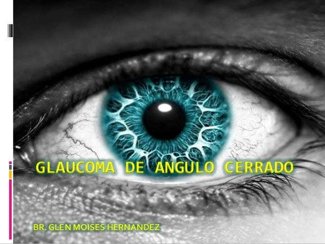 GLAUCOMA DE ANGULO CERRADOBR. GLEN MOISES HERNANDEZ
