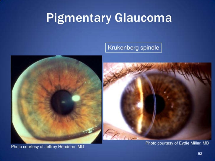 Glaucoma Review by Dr. Allen Krukenberg Spindle