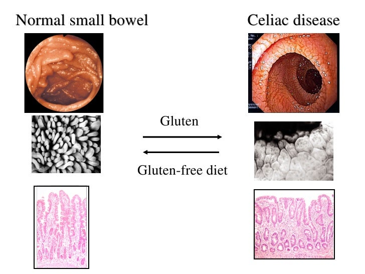 Gliadin Intestinal Permeability And Celiac Disease From