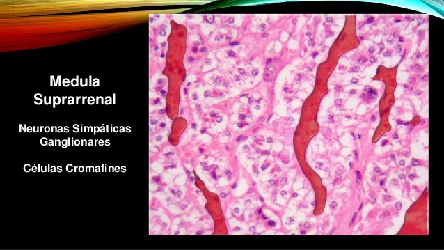 esteroides localizados inyectables