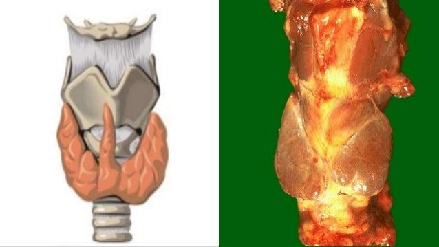 Anatomía de la Glándula Tiroides