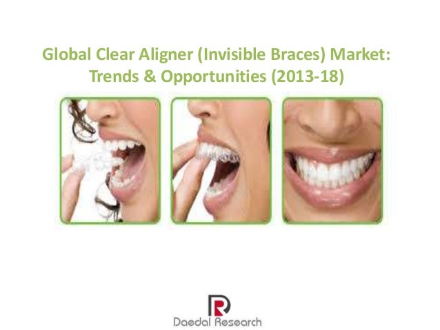 Global Clear Aligner (Invisible Braces) Market: Trends & Opportunities (2013-18)