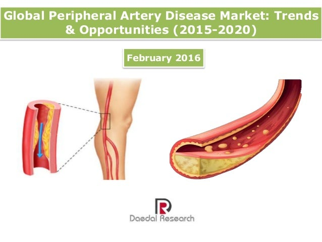 Clinical Assessment of Patients with Peripheral Arterial Disease
