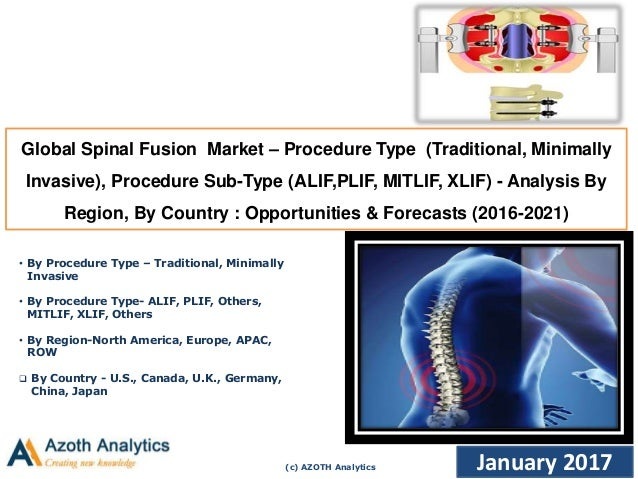 Spinal Implants and Surgical Devices Market worth 127 Billion USD by 2021