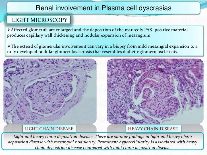 Renal involvement in Plasma cell dyscrasias  LIGHT MICROSCOPYAffected glomeruli are enlarged and the deposition of the ma...