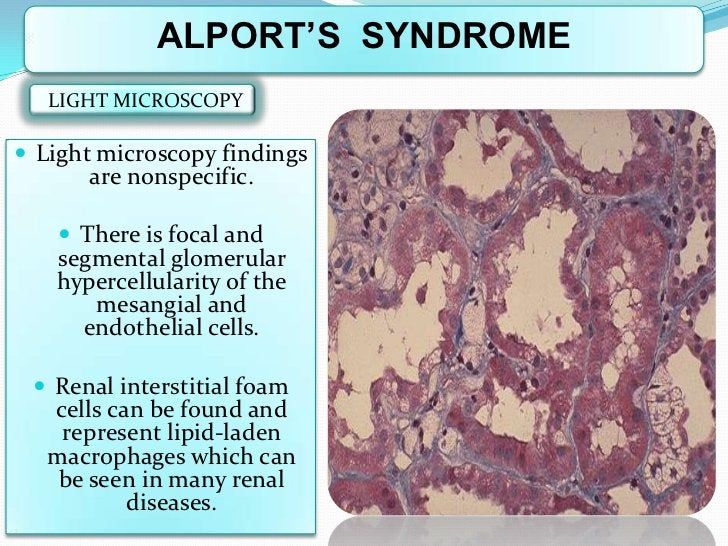 ALPORT'S SYNDROME   LIGHT MICROSCOPY Light microscopy findings       are nonspecific.     There is focal and   segmental...