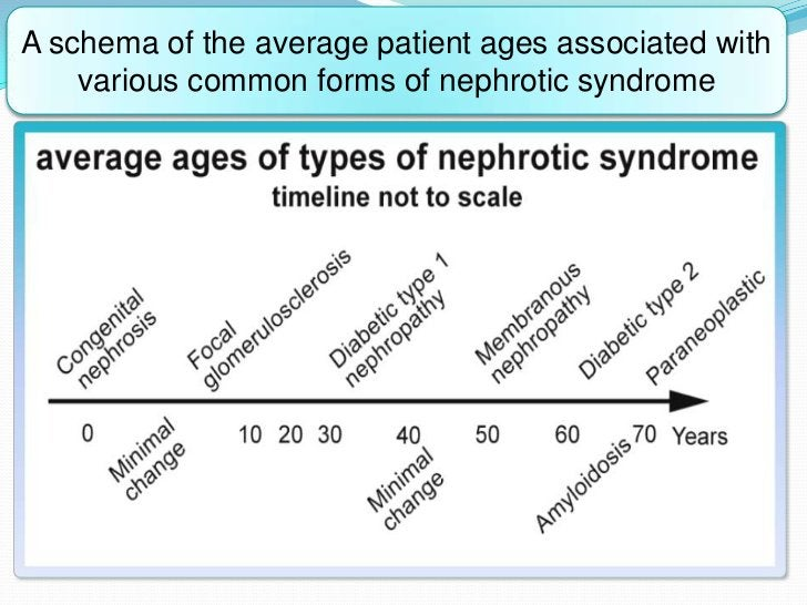 A schema of the average patient ages associated with    various common forms of nephrotic syndrome