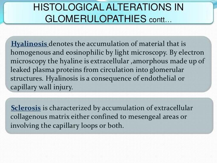 HISTOLOGICAL ALTERATIONS IN         GLOMERULOPATHIES contt…Hyalinosis denotes the accumulation of material that ishomogeno...