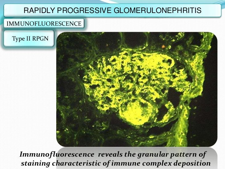 RAPIDLY PROGRESSIVE GLOMERULONEPHRITISIMMUNOFLUORESCENCE Type II RPGN   Immunofluorescence reveals the granular pattern of...