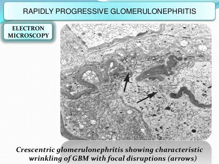 RAPIDLY PROGRESSIVE GLOMERULONEPHRITIS ELECTRONMICROSCOPY  Crescentric glomerulonephritis showing characteristic     wrink...