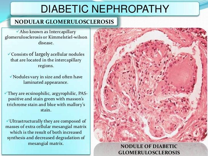 DIABETIC NEPHROPATHY     NODULAR GLOMERULOSCLEROSIS    Also known as Intercapillaryglomerulosclerosis or Kimmelstiel-wils...