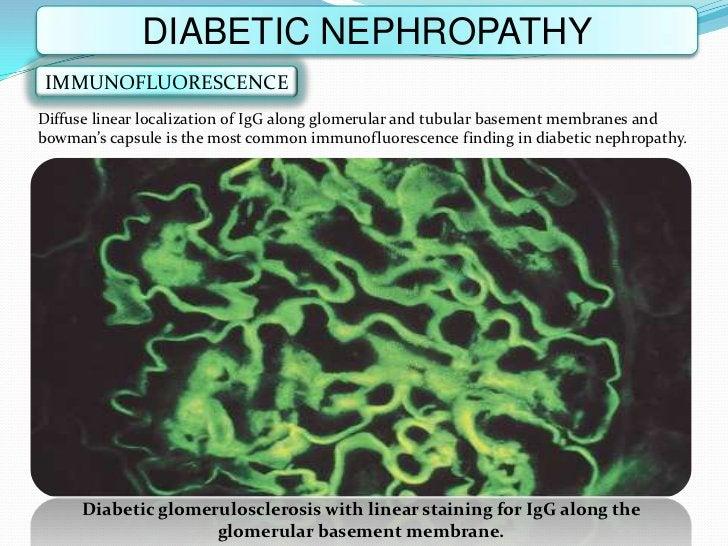 DIABETIC NEPHROPATHY IMMUNOFLUORESCENCEDiffuse linear localization of IgG along glomerular and tubular basement membranes ...