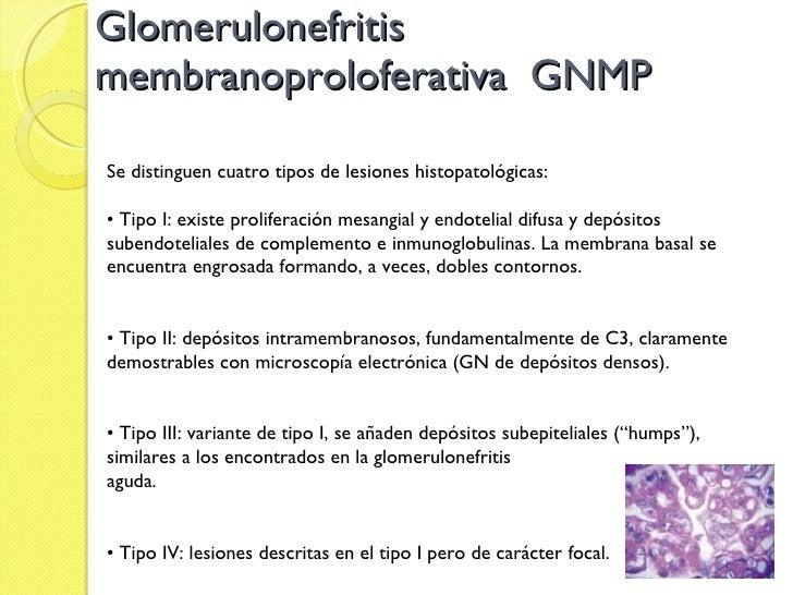 Glomerulonefritis  membranoproloferativa  GNMP Se distinguen cuatro tipos de lesiones histopatológicas: •  Tipo I: existe ...