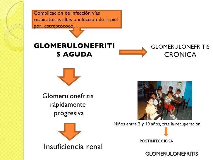 GLOMERULONEFRITIS GLOMERULONEFRITIS AGUDA GLOMERULONEFRITIS CRONICA Glomerulonefritis  rápidamente  progresiva Insuficienc...
