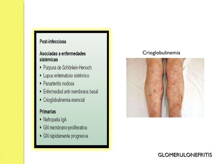Crioglobulinemia GLOMERULONEFRITIS