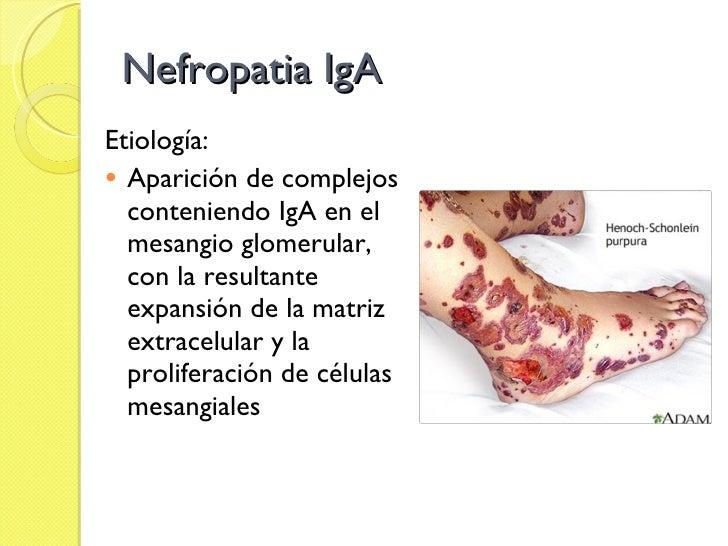 Nefropatia IgA <ul><li>Etiología:  </li></ul><ul><li>Aparición de complejos conteniendo IgA en el mesangio glomerular, con...