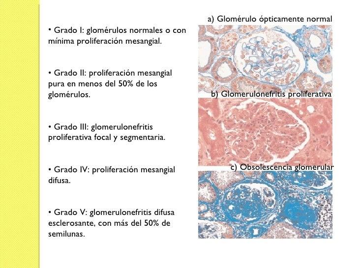 a) Glomérulo ópticamente normal  b) Glomerulonefritis proliferativa c) Obsolescencia glomerular <ul><li>Grado I: glomérulo...