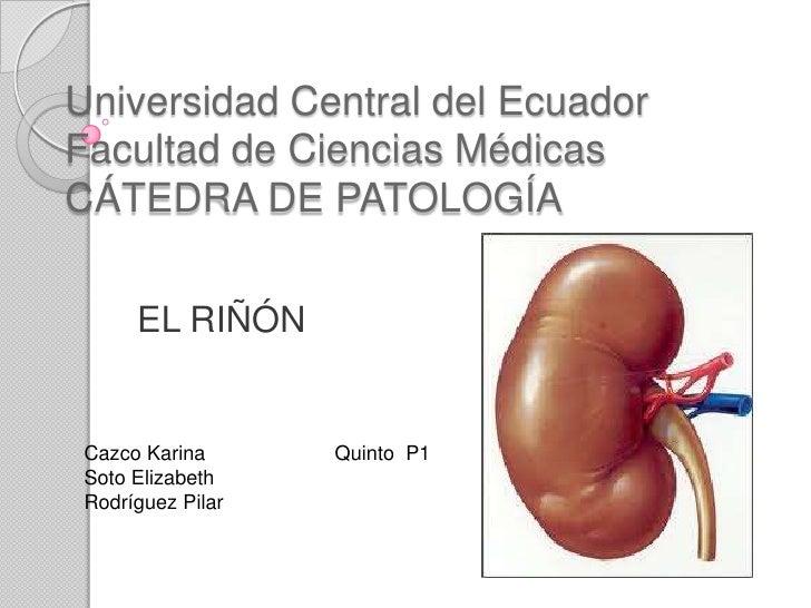 Universidad Central del EcuadorFacultad de Ciencias MédicasCÁTEDRA DE PATOLOGÍA<br />EL RIÑÓN<br />Cazco Karina           ...