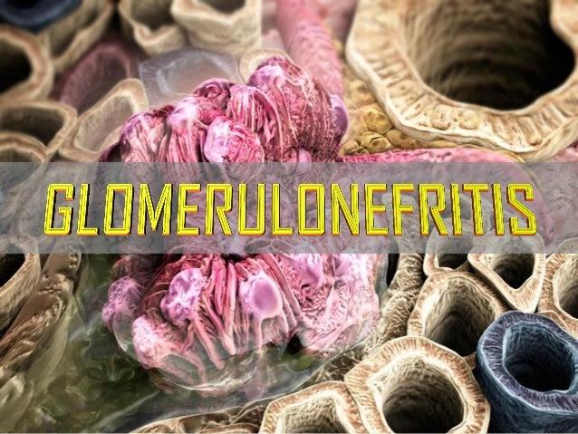 MENÚ DEL DÍA • Riñón: generalidades • Estructura y función del glomérulo • Glomerulopatias primarias