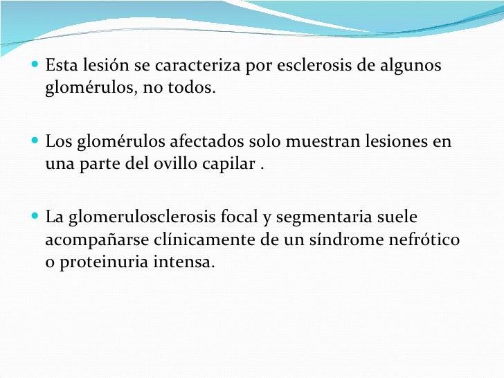 <ul><li>Esta lesión se caracteriza por esclerosis de algunos glomérulos, no todos. </li></ul><ul><li>Los glomérulos afecta...