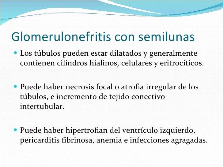 Glomerulonefritis con semilunas <ul><li>Los túbulos pueden estar dilatados y generalmente contienen cilindros hialinos, ce...