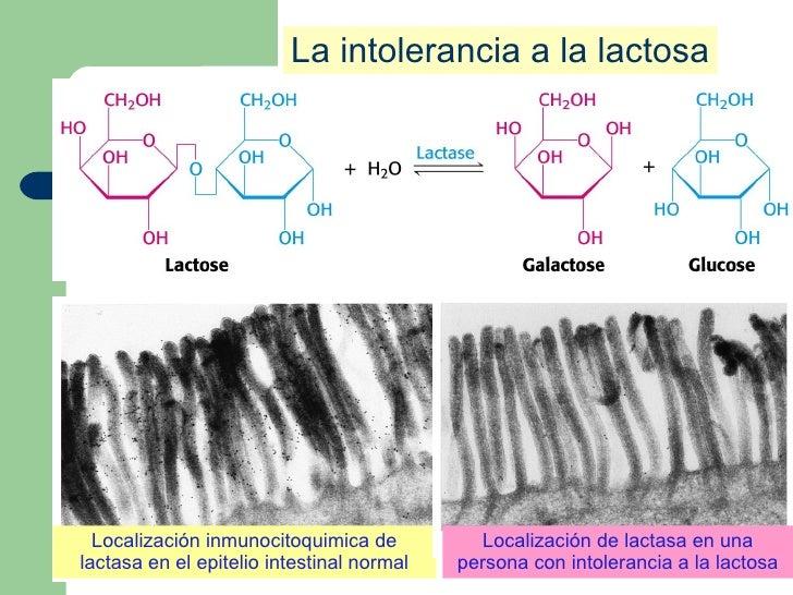 La intolerancia a la lactosa Localización inmunocitoquimica de lactasa en el epitelio intestinal normal Localización de la...