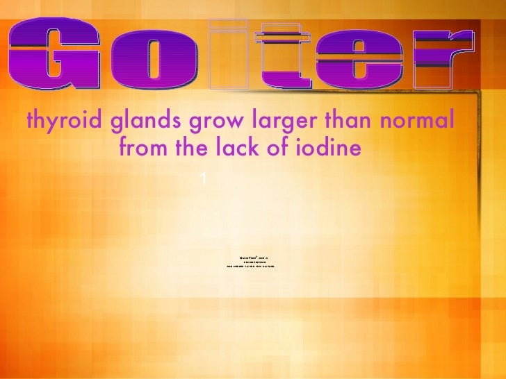 thyroid glands grow larger than normal from the lack of iodine Goiter 1