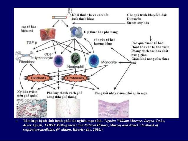 Các cơ chế giới hạn lưu lượng khí của COPD Bệnh các đường dẫn khí nhỏ • Viêm đường dẫn khí • Xơ hóa đường dẫn...