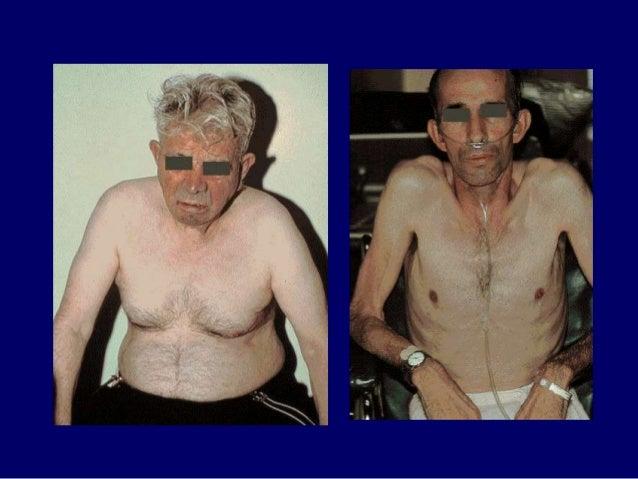 CẬN LÂM SÀNG Thăm dò chức năng hô hấp:  Hội chứng tắc nghẽn: FEV1 giảm; tăng dung tích khí cặn.  Khí máu động mạ...