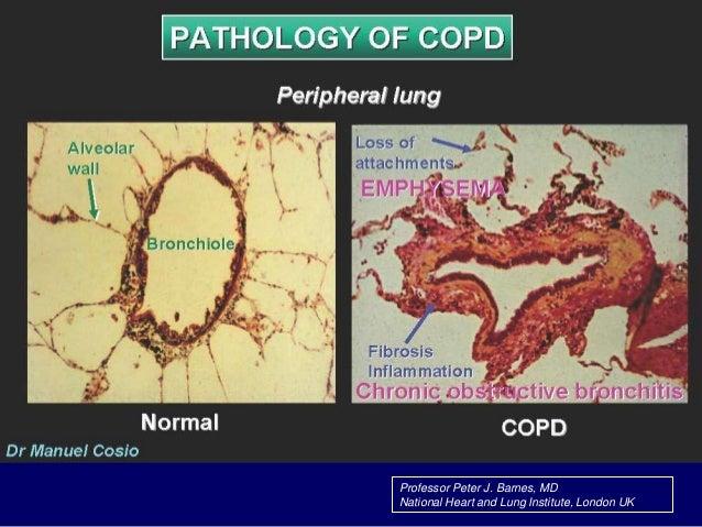 SINH LÝ BỆNH  Giới hạn lưu lượng.  Ứ khí.  Giảm trao đổi khí.  Tăng áp phổi.  Ảnh hưởng toàn thân.