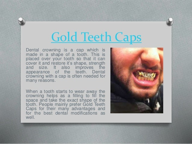 Gold Teeth Caps Dental crowning is a cap which is made in a shape of a ...